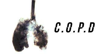Vaping &amp COPD?
